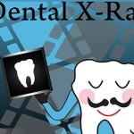 Four Common Myths About Dental X-rays