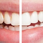4 types of bleaching