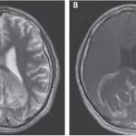 人体内潜伏的寄生虫在大脑中觉醒