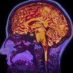 腹部脂肪与脑容量的关系