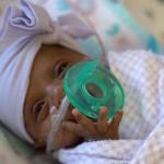 苹果姑娘,世界上最小的婴儿是如何活下来的?