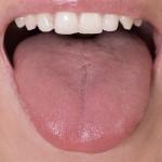 肥大的舌头会在你睡著时堵住气道