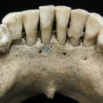 中世纪欧洲妇女的牙齿中发现了青金石